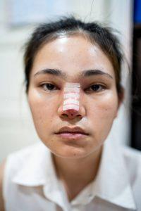 bad nose jobs