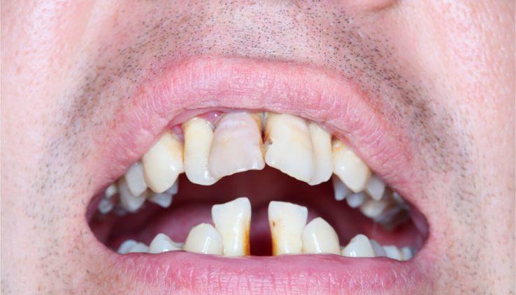 ugly teeth