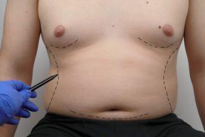 gynecomastia surgery scar