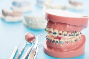 orthodontic procedures