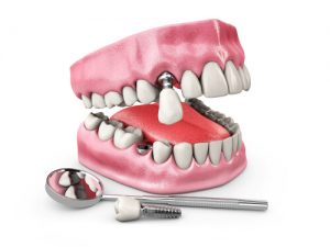 loose dental implant