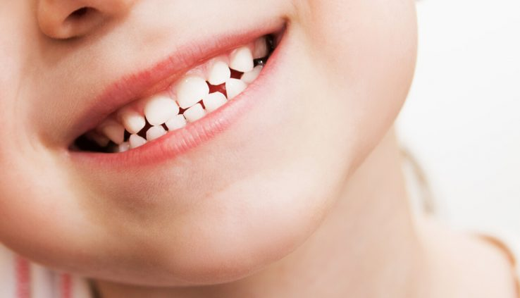 teeth whitening for kids