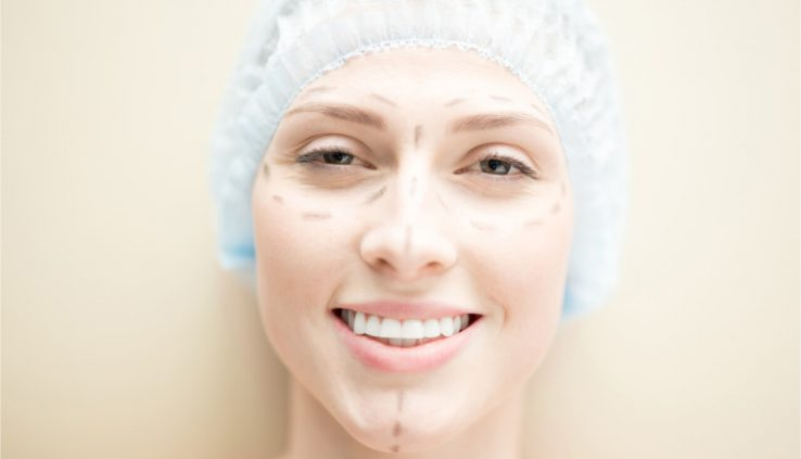 Can Rhinoplasty And Chin Implant Reduce A Persons Anxiety