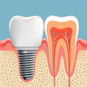 tooth implant problems