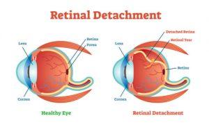 illustrating eye retina detachment
